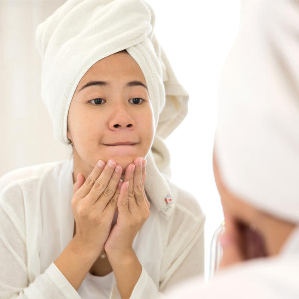 Easy Ways to Prevent and Erase Acne Scars | Fitness Magazine