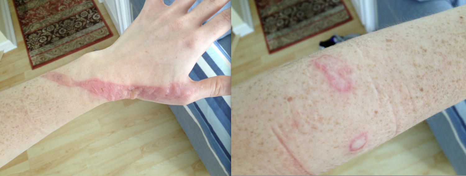 How I Survived Second Degree Burns From A Hair Removal Fail