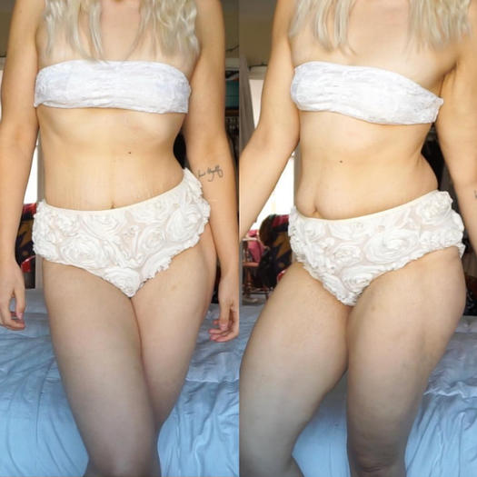 Useful topic nude girls with stretch marks think, that