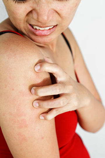 What Are Those Bumps on My Arms? | Fitness Magazine