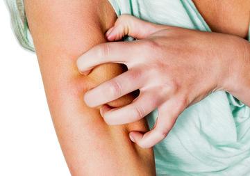 Woman Has Sweat Allergies | Fitness Magazine